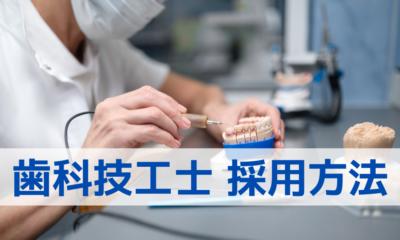 歯科技工士 採用方法